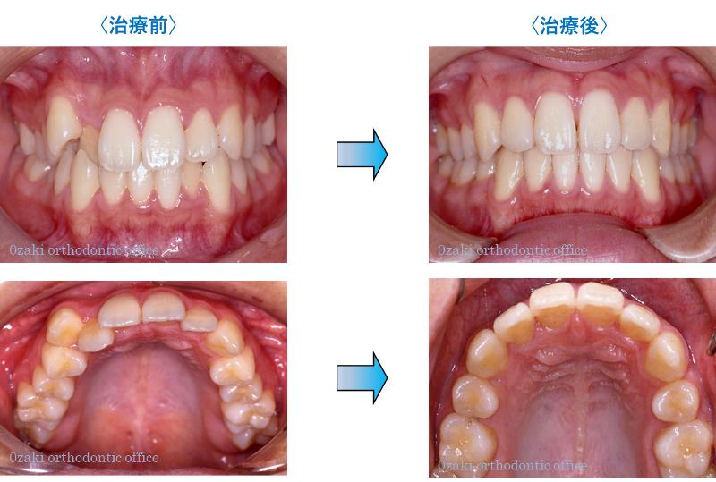 歯のデコボコ、八重歯