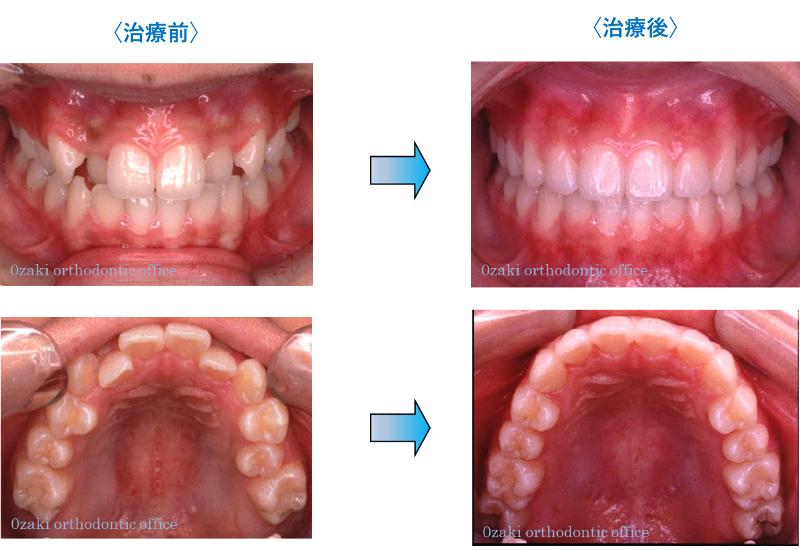 叢生(そうせい)、八重歯、乱杭歯1
