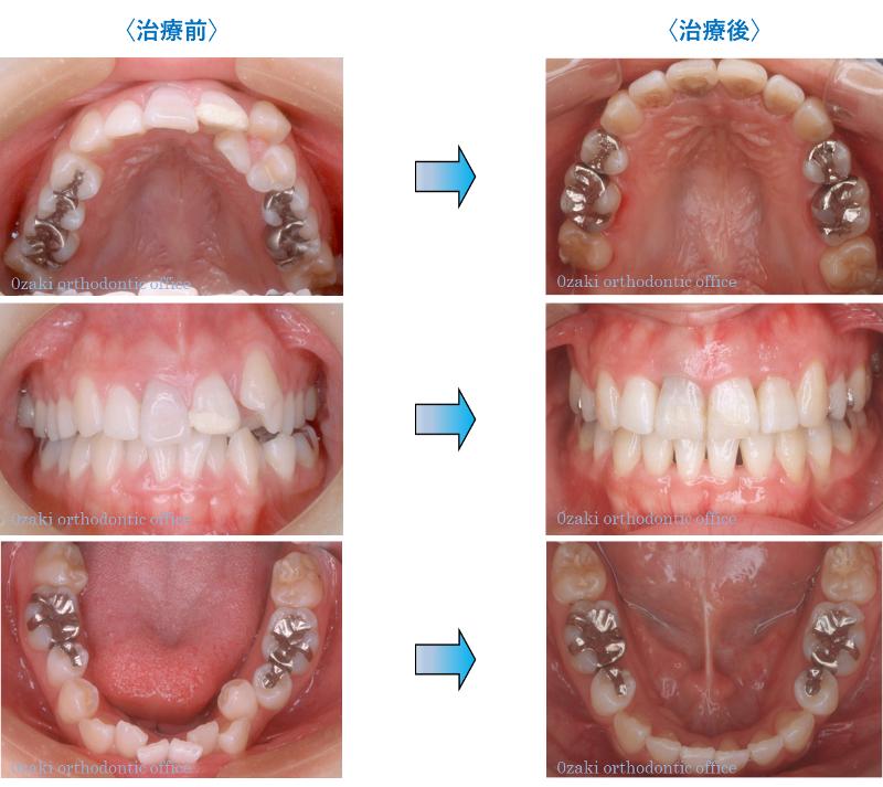 叢生(そうせい)、八重歯、乱杭歯2